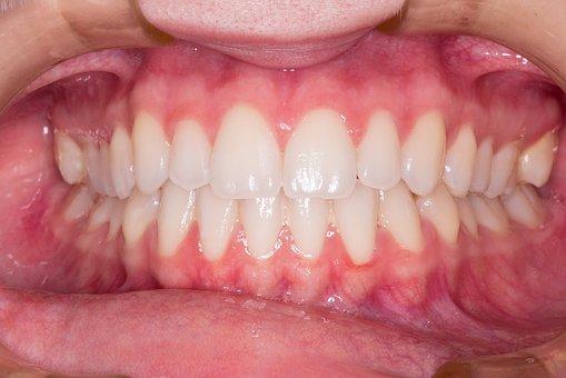 teeth-2339168__340