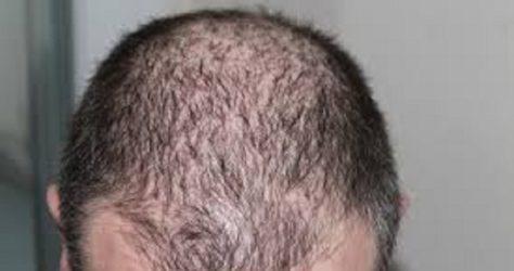 Greffe de cheveux ok