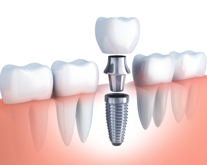 row human tooth and Dental implant. 3d illustration