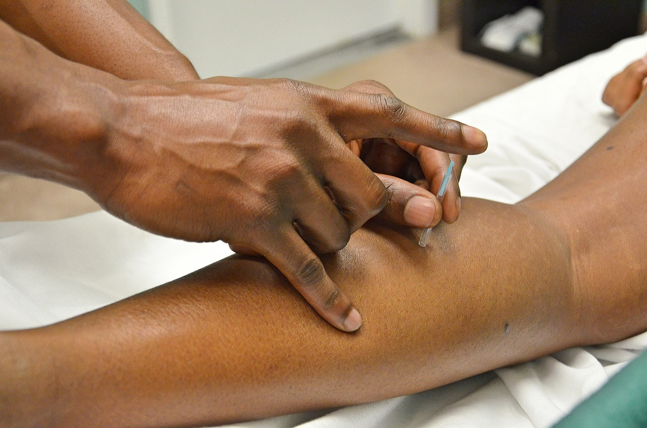 les points d'acupuncture