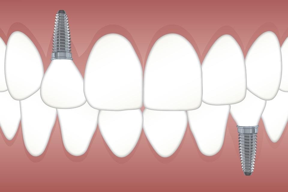teeth-3597679_960_720