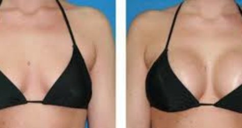 chirurgie des seins