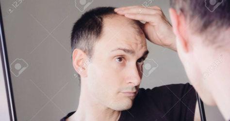 hair-loss-problem